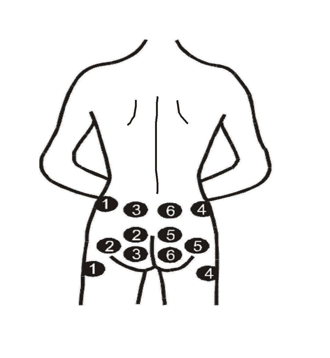 Целутрон-електростимулатор Процедура 6